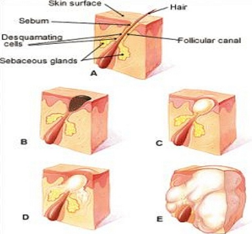 Cystic-Acne-Diagram