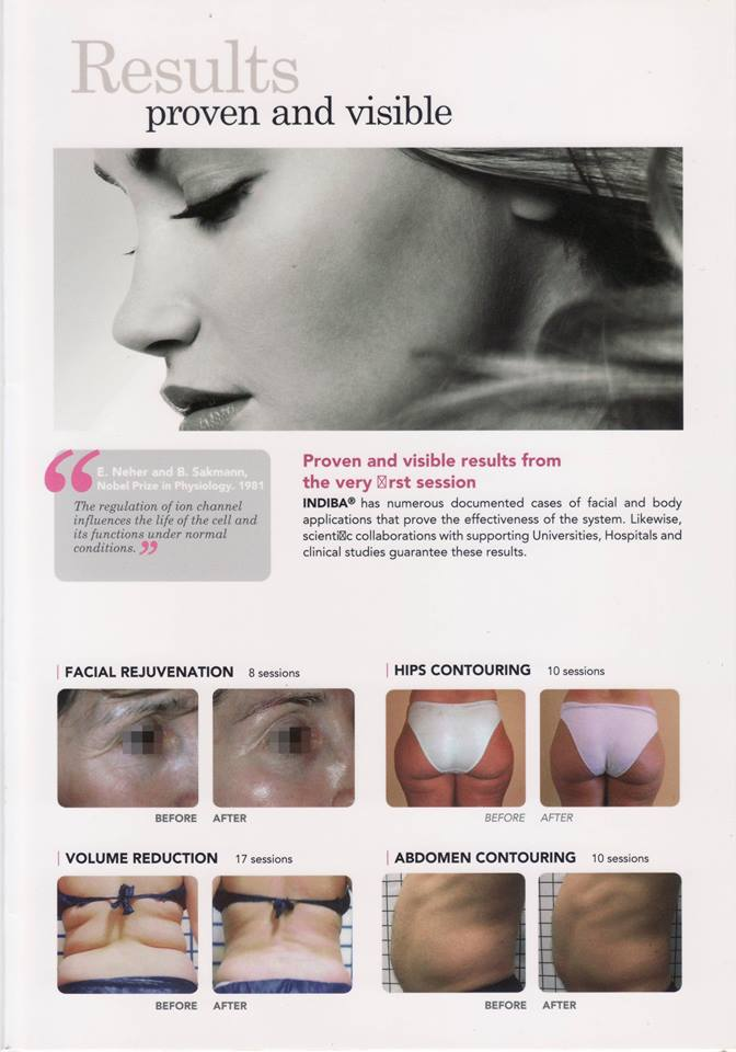 INDIBA Deep Beauty now in NELLY Skin Care3